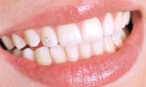 Камень на зубах