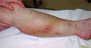 Острые тромбозы в кровеносной системе