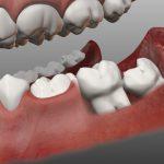 Как правильно удалять зуб мудрости?