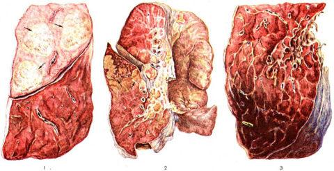 Особенности развития бактериальной, микоплазменной и хламидийной пневмонии
