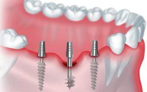 Имплантация зубов в Киеве в клинике Лукашука